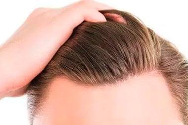 trapianto capelli fue italia box cover biorigeneral hair clinic donato zizi