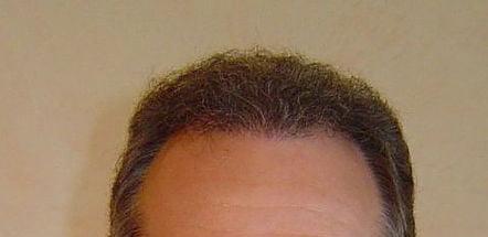 Caso clinico: dopo il trapianto capelli FUE